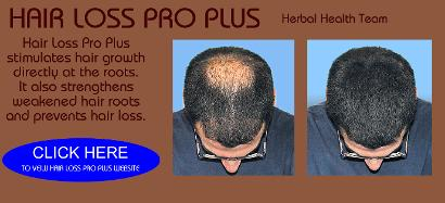 http://www.herbalhealthteam.co.uk/hair-loss-pro-plus.php